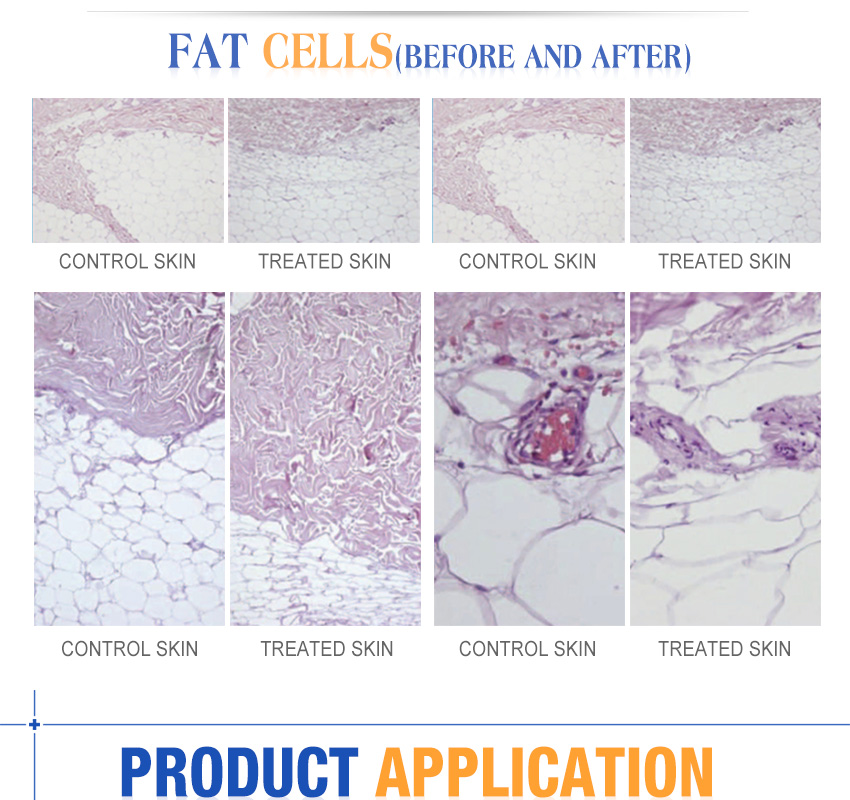 laser fat removal machine for sale