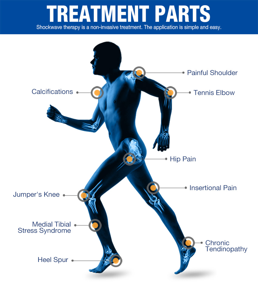 extracorporeal shock wave therapy treatment parts