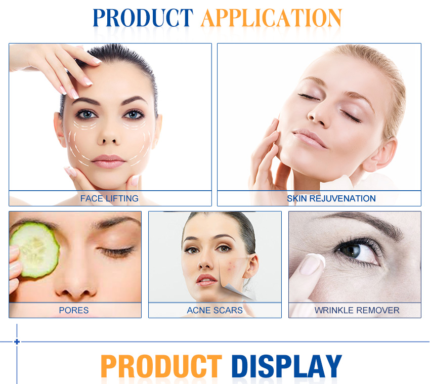 fractional rf for acne scars product application