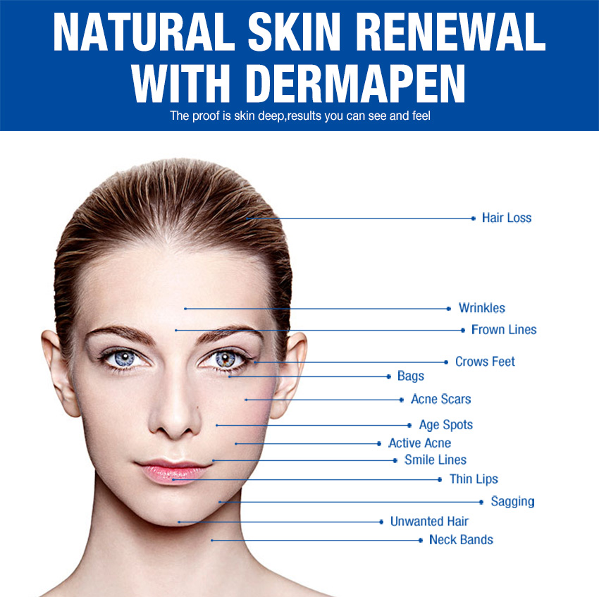dermapen for acne scars functions