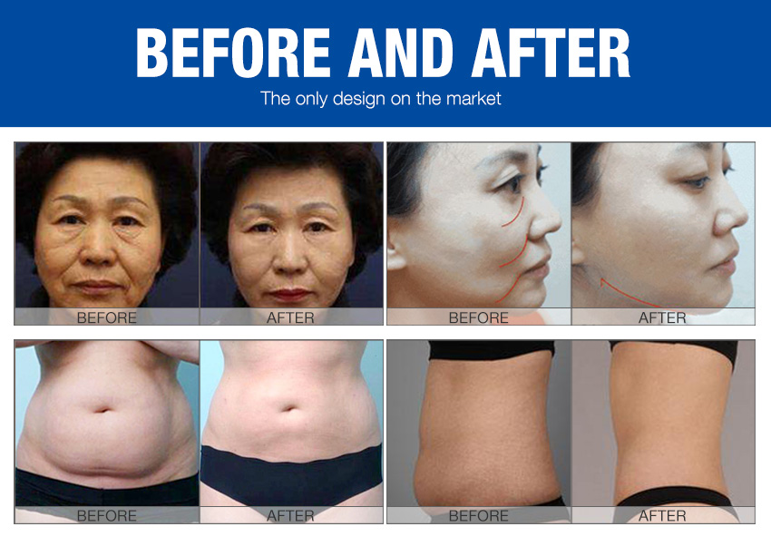 skin tightening machines for sale effects