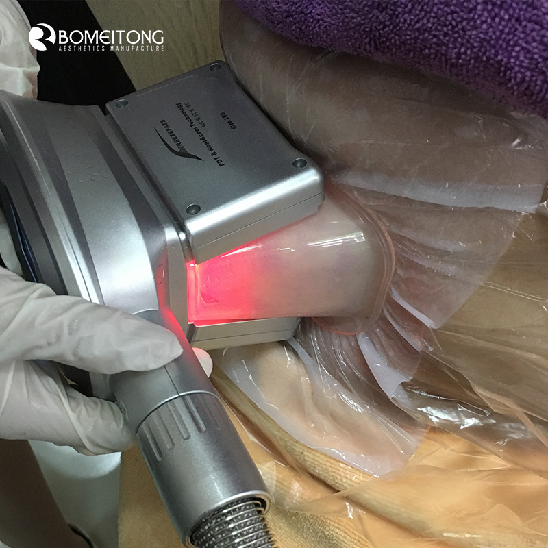 Cryolipolyse Fat Freezing Machine for Double Chin Removal