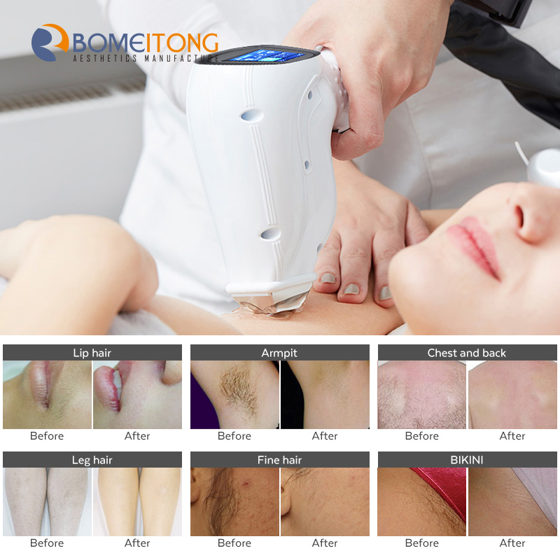 Epilator 808nm Freezing Point Laser Diode Hair Removal